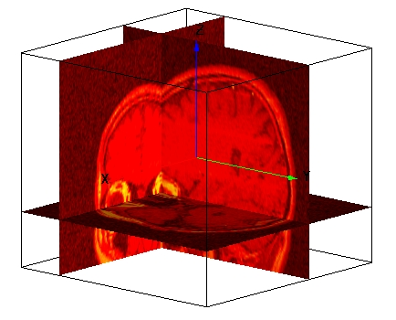Gizmo slices through MRI data